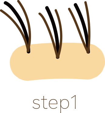 step1・増毛