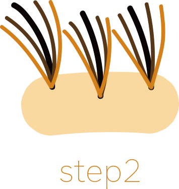 step2・増毛