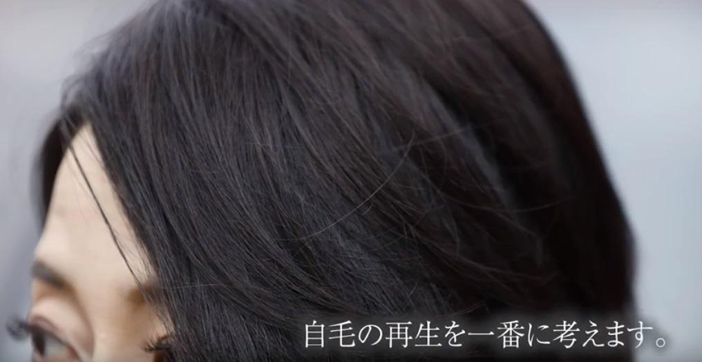 自毛の再生を一番に考えます